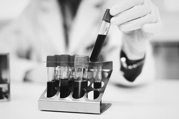 Biohemijske analize